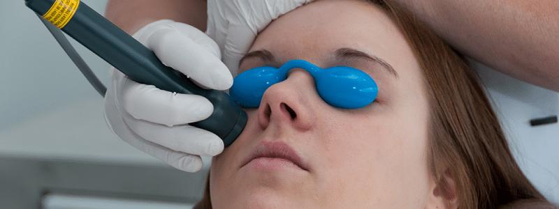 soft-laser-voor-huidverstrakking-bij-perine-800x300-website-laser